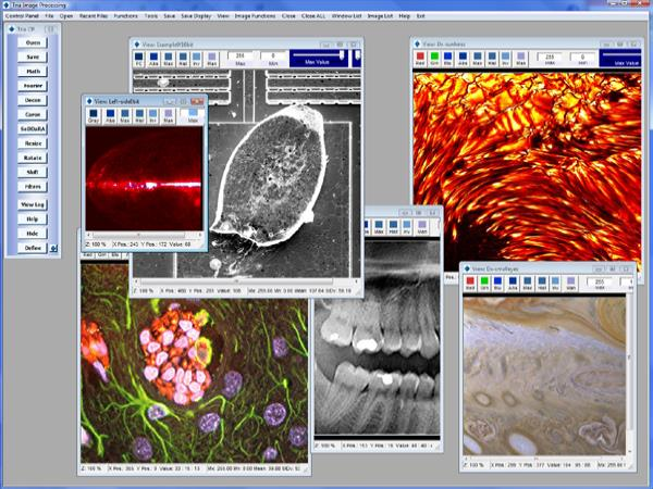 Tria: Advanced Image Processing and Analysis Program